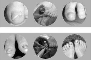 Füße Nagelprothetik